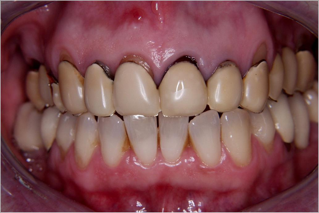 Capsule in ceramica integrale su denti naturali ed impianti