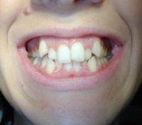 Trattamento ortodontico con metodica Invisalign