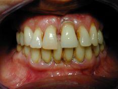 Trattamento implanto protesico a carico immediato su paziente con problemi parodontali.