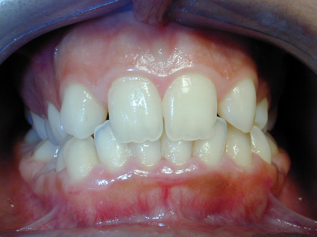 Trattamento ortodontico con metodica invisalign di agenesia dentaria multipla e  impianti