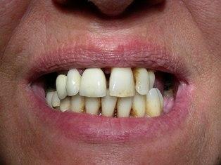 Paziente con problemi parodontali. Implantologia a carico immediato
