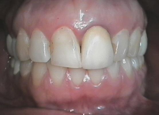 Faccette e Parodontologia: incisivo centrale con gengivite da corona in metal-ceramica