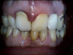 Parodontite degli incisivi centrali superiori