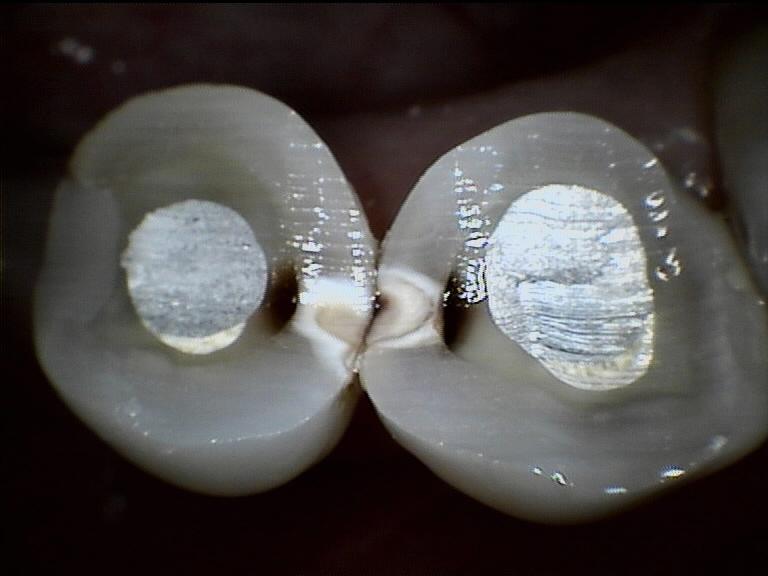Carie interprossimali dei premolari e molari: lo scovolino interdentale strumento essenziale per prevenirle