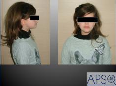 Ortodonzia intercettiva per contrastare l'interposizione del labbro inferiore