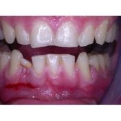 Estrazione elemento dentario e impianto dentale