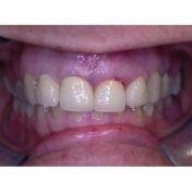 Protesi metallo ceramica - implantoprotesi