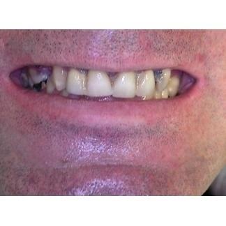 Ripristino estetico e funzionale dei denti