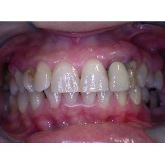Cura della parodontite - piorrea