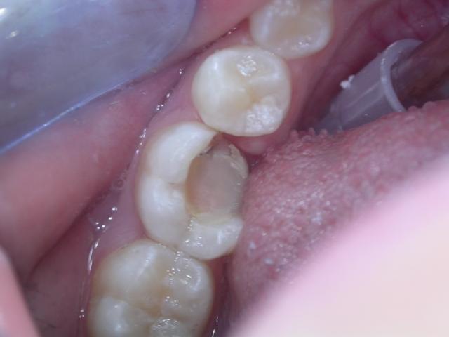 Laser e intarsio: come recuperare un molare fratturato