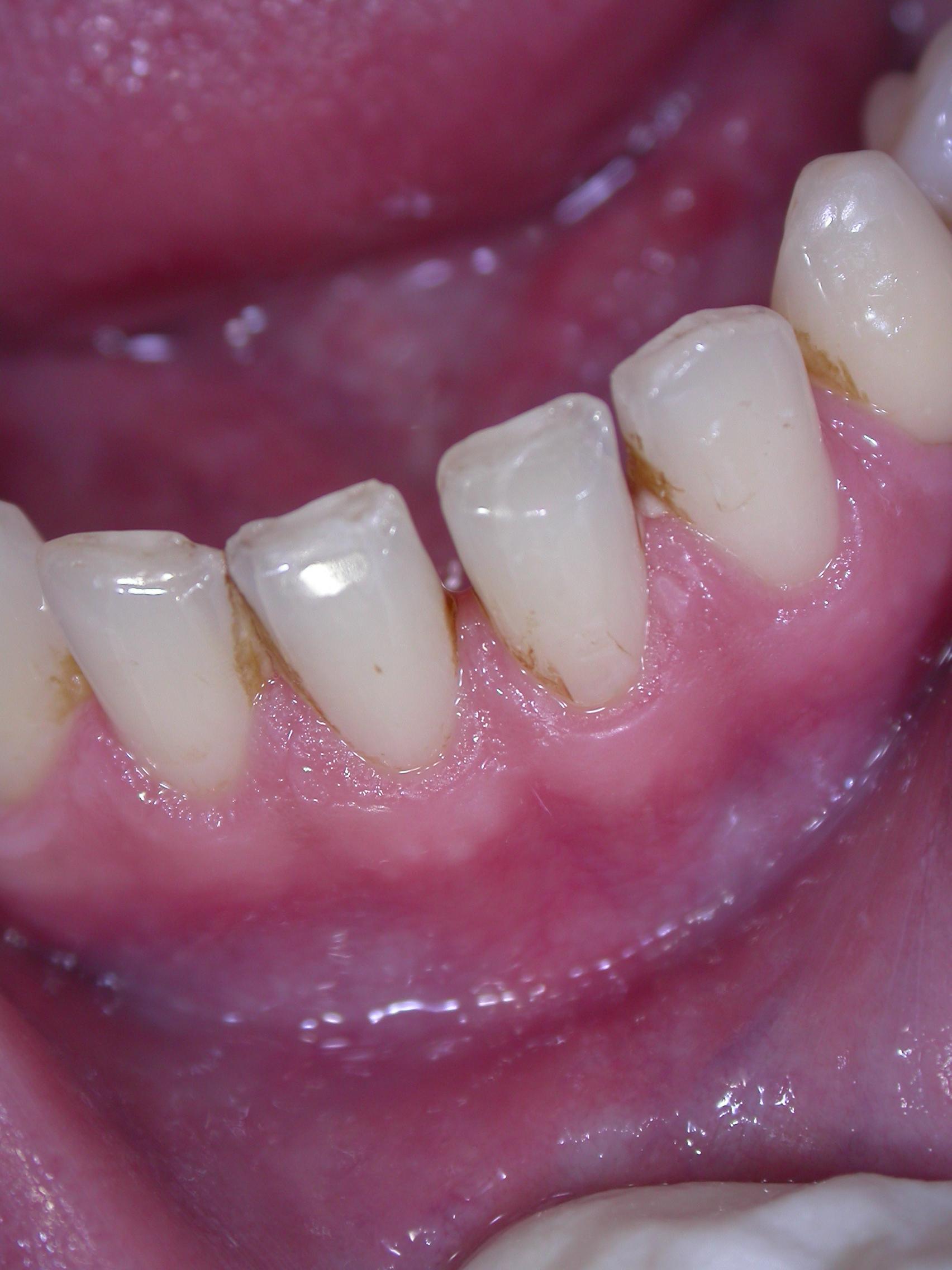 Chiusura conservativa di un diastema inferiore