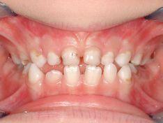 Quando l'Ortodonzia inizia a cinque anni