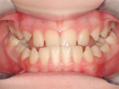 Prognatismo mandibolare in bambino di 11 anni