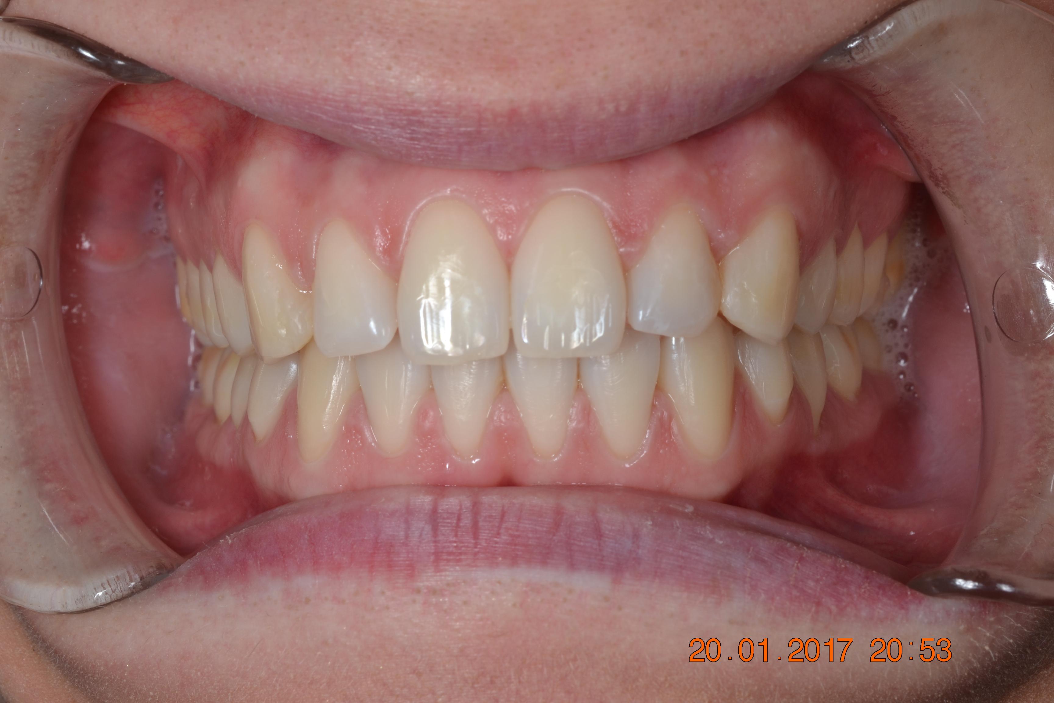 Chiusura diastemi multipli con l'ortodonzia
