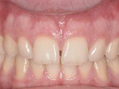 Implantologia dentale post estrattiva in zona estetica
