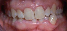 Ortodonzia Invisibile - Malocclusione di II classe con morso profondo