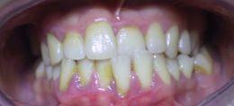 Terza classe dentale, crossing bite e cervicalgia
