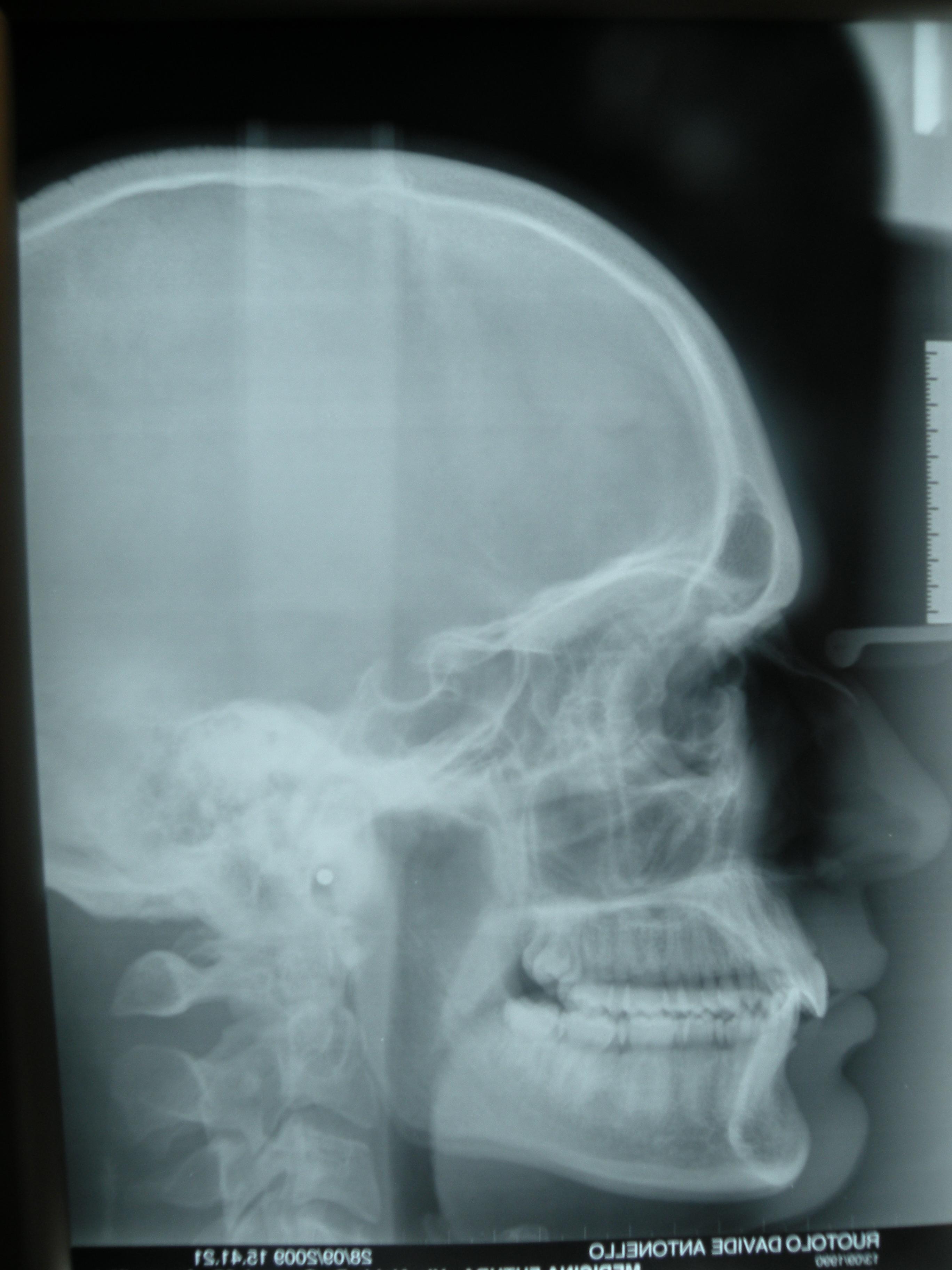 Ortodonzia invisibile - Morso profondo