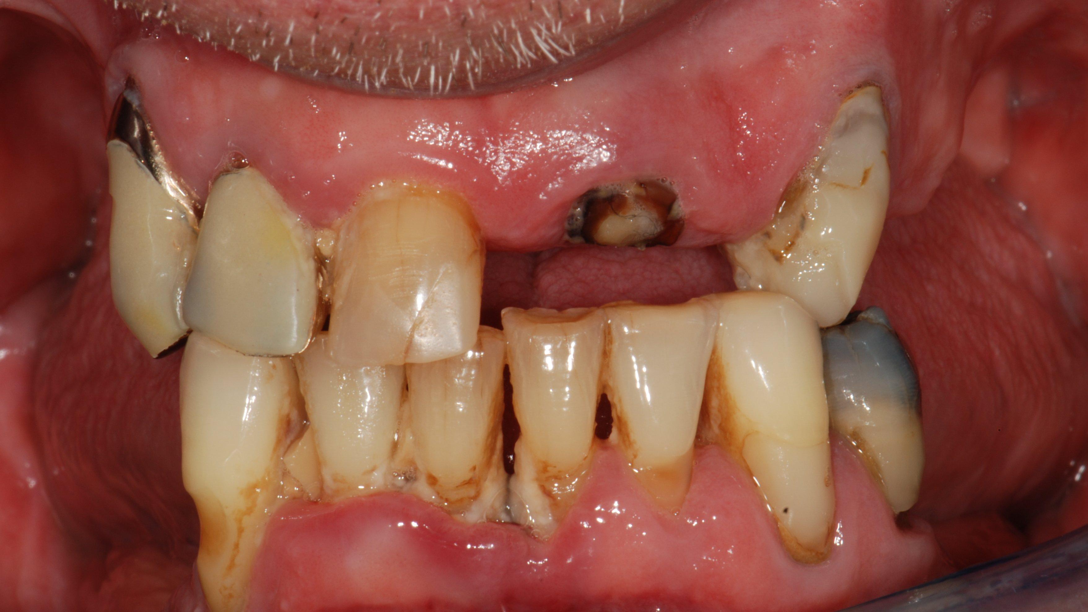 Implantologia a carico immediato con tecnica All on 4