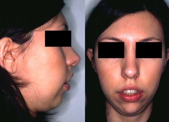 Grave caso di seconda classe ortodontica