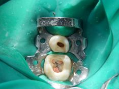 Restauro indiretto mediante endo-crown di elementi trattati endodonticamente