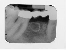 Rimozione di Tumore Odontogeno Cheratocistico mandibolare