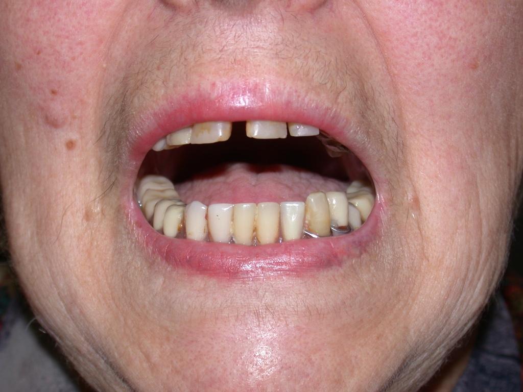 Trattamento d'urgenza del blocco articolare temporo-mandibolare acuto