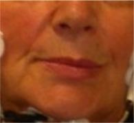 Torsione mandibolare