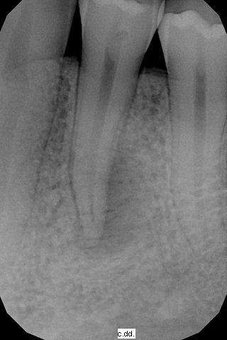 Parodontite periapicale acuta