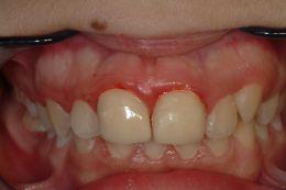 Restauro dei 1.1 2.1 per riposizionamento attacco ortodontico.