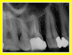 Ritrattamento Endodontico