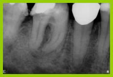 Ritrattamento endodontico - caso 3
