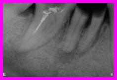 Ritrattamento endodontico su precedente tentativo di trattamento