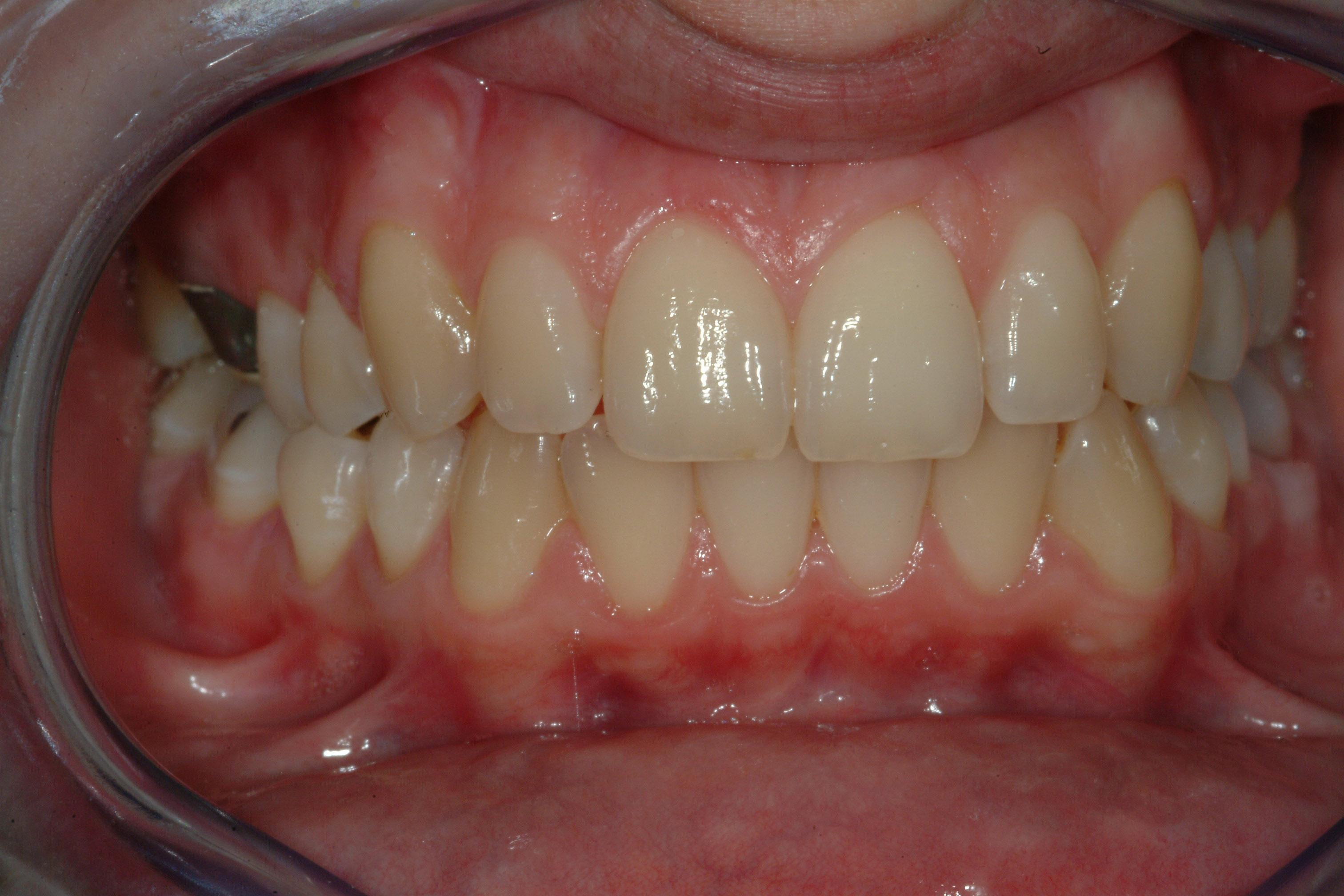 Sbiancamento dentale con laser
