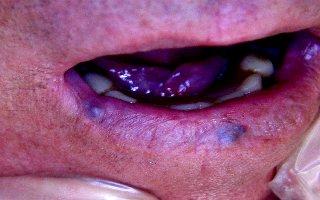 Trattamento di lesioni angiomatose del cavo orale con laser a diodi
