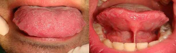 Frenulectomia linguale in adulto con laser a diodi 810 nm
