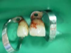 Odontoiatria laser assistita