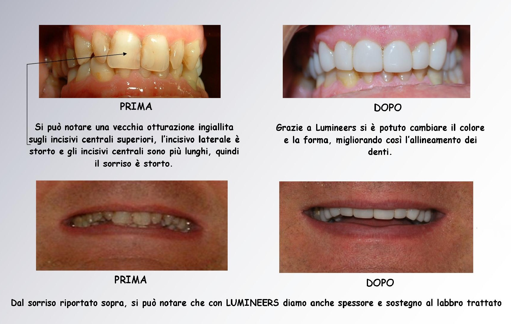 Faccette dentali: Lumineers