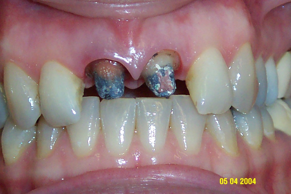 Corone estetiche in zirconio