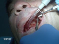 Implantologia, circolare superiore a carico immediato