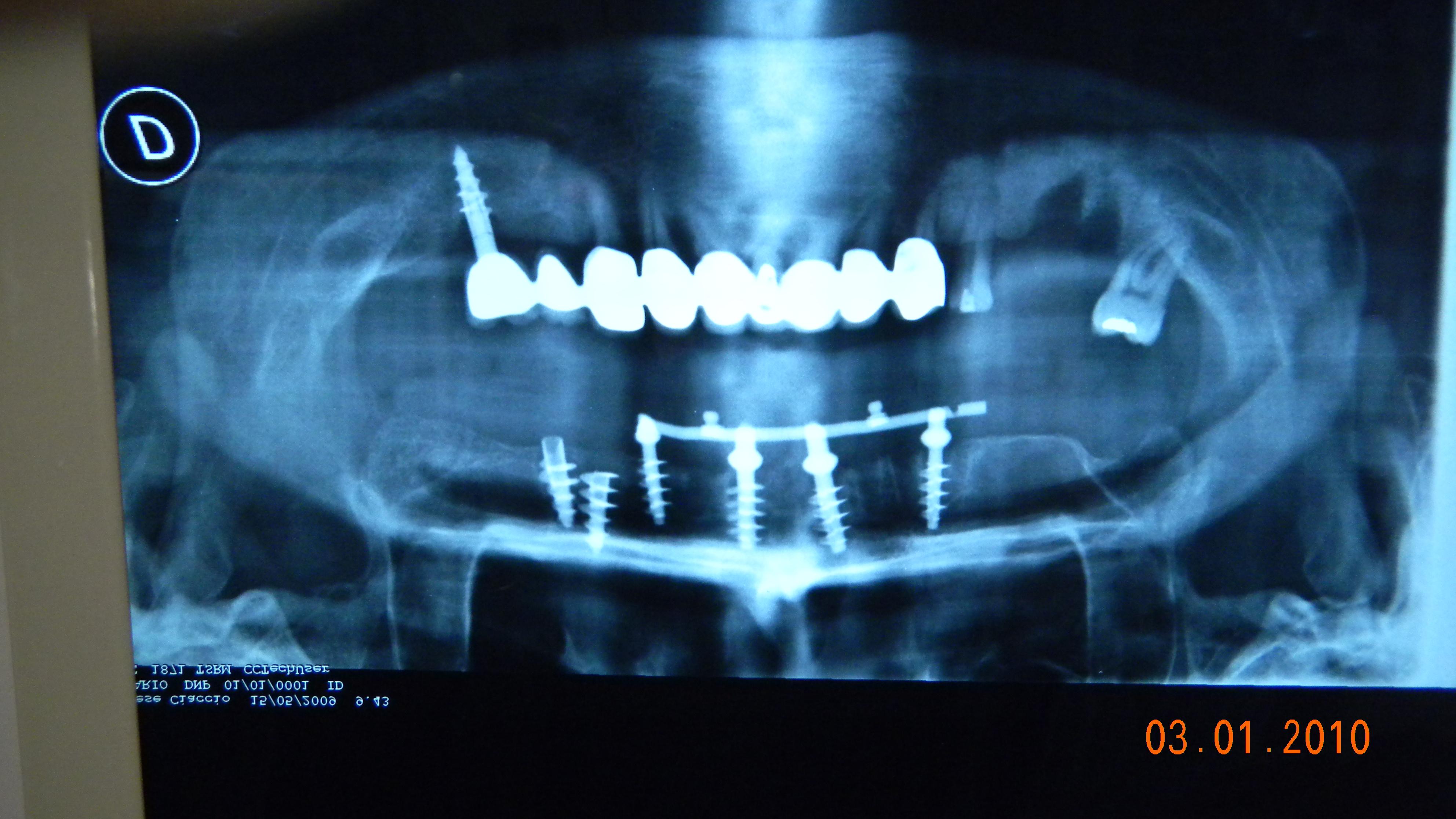 Casi implantologici trattati con impianti a carico immediato.