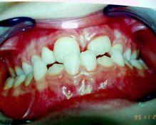 Terza classe dentale e scheletrica