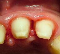 Odontoplastica e Osteoplastica estetica