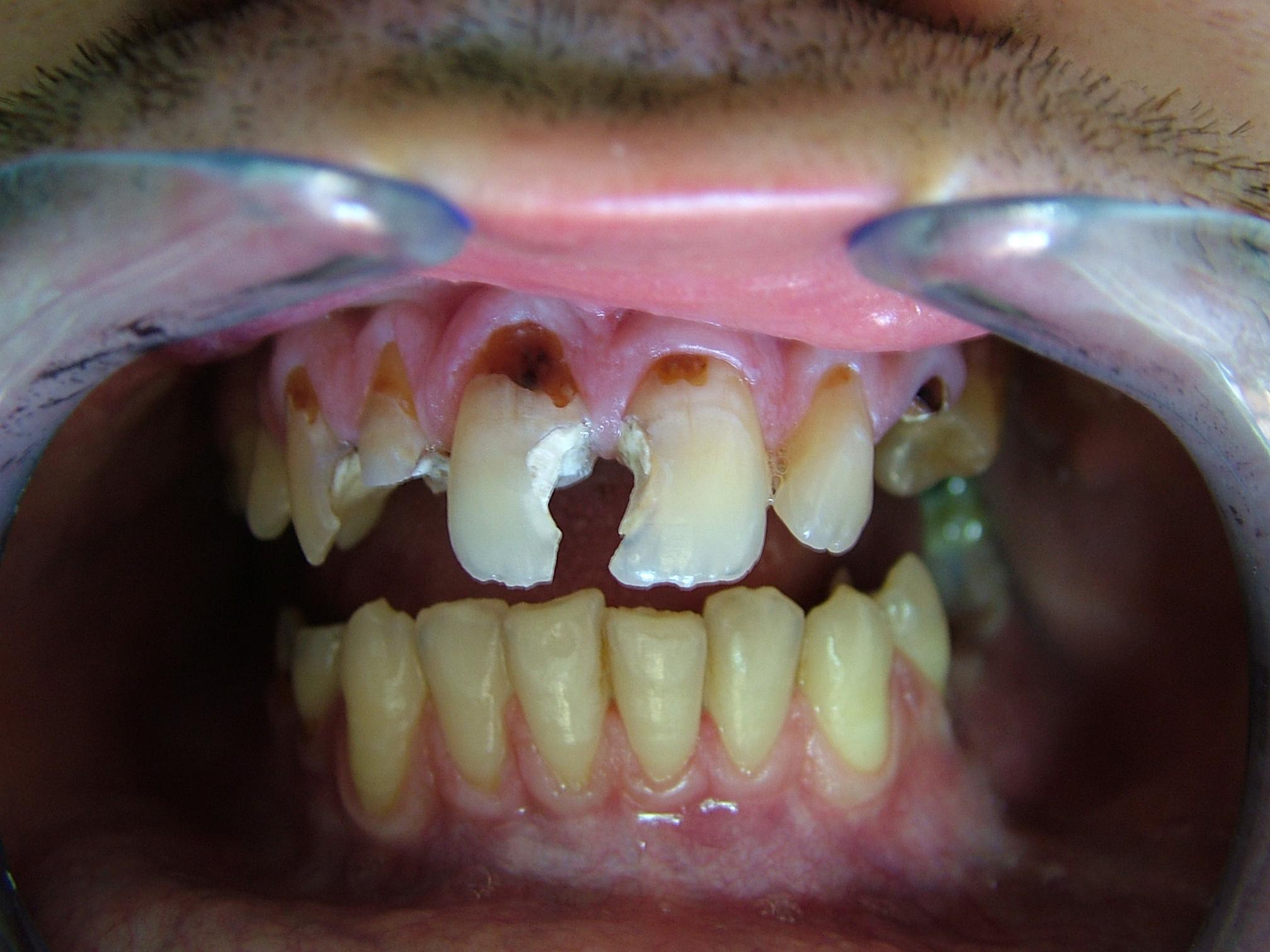 Endodonzia e conservativa: i perni in fibra come alternativa alla protesi