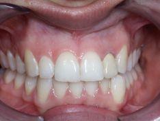 Sostituzione di  incisivo laterale fratturato con impianto ankylos dentsply friadent a carico immediato