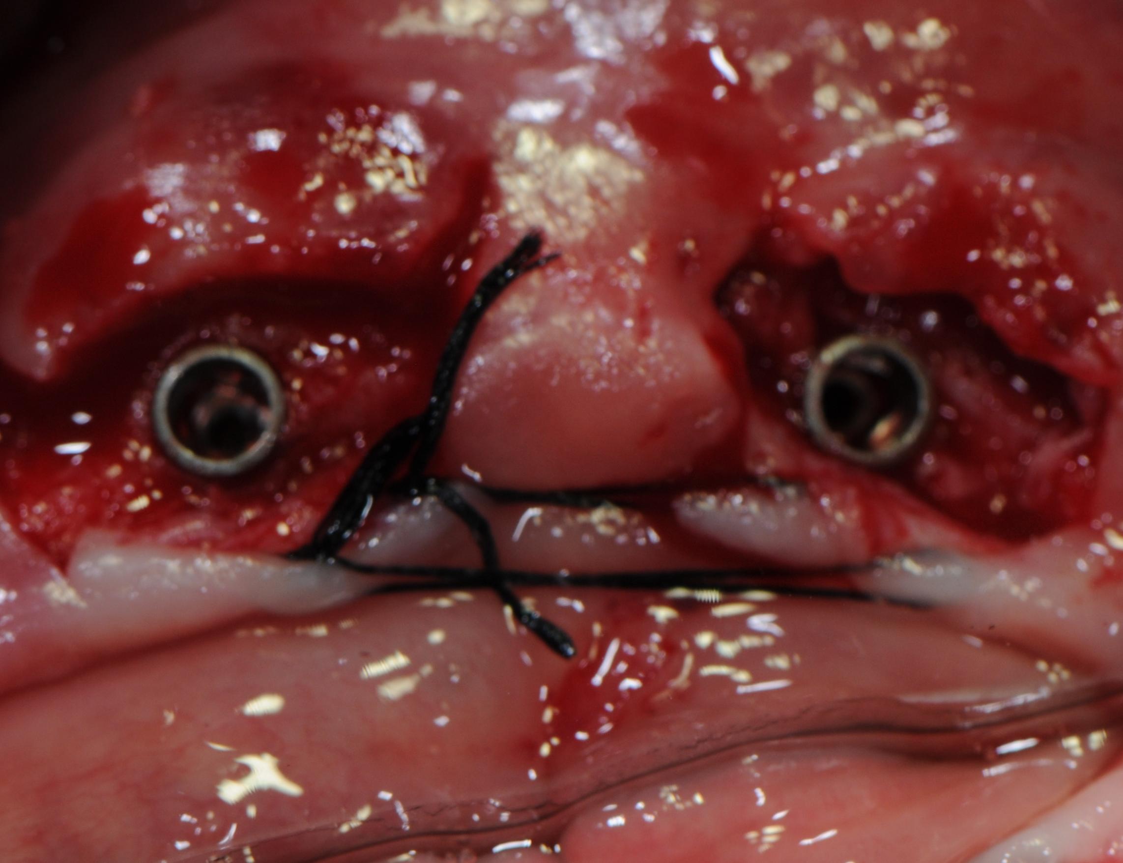 Overdenture in grossa atrofia ossea mandibolare con impianti anthogyr e locator