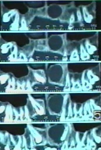 Grossa cisti radicolare del mascellare