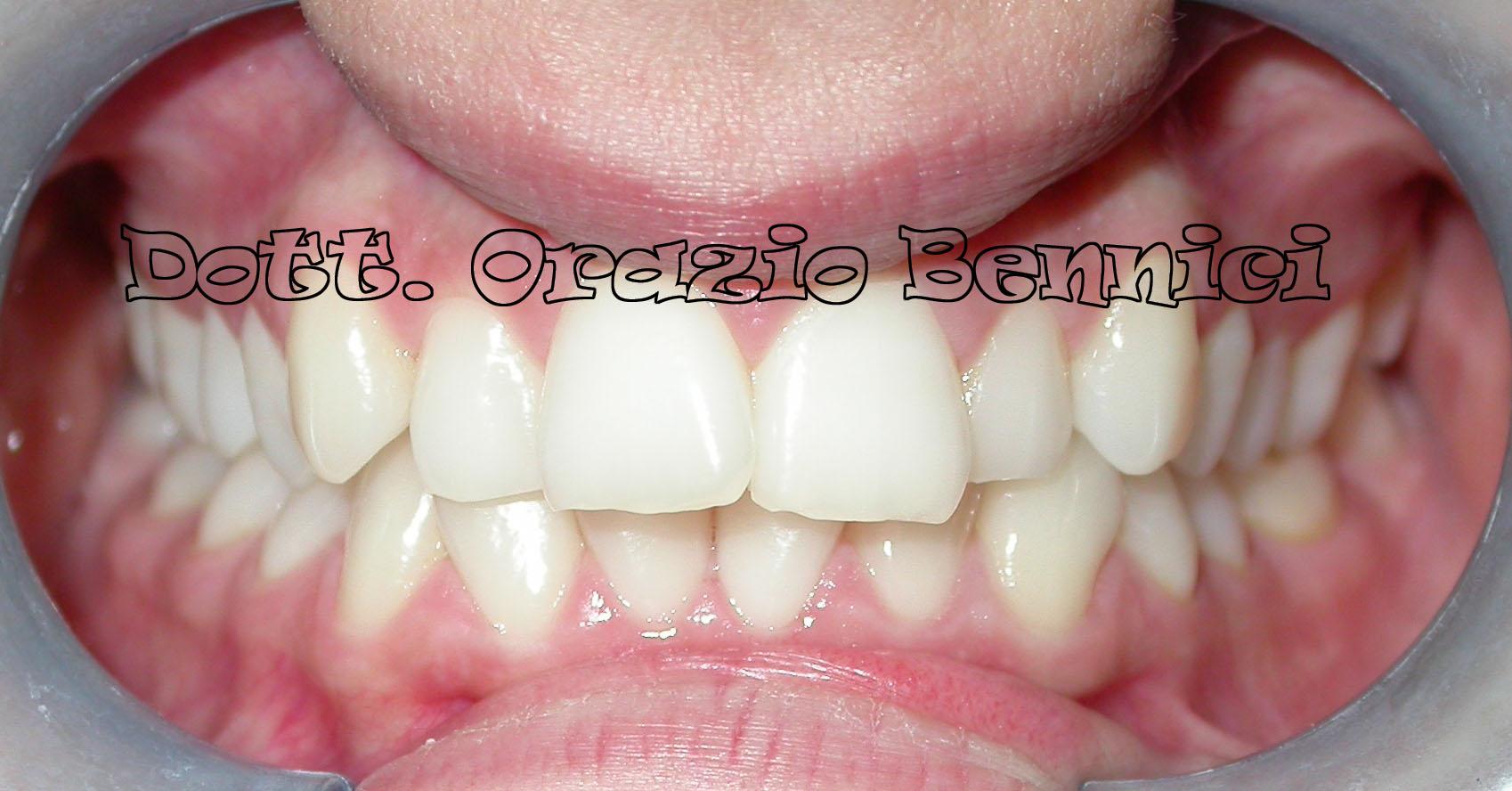 Blocco mandibolare e trattamento ortodontico linguale. Dr Orazio Bennici