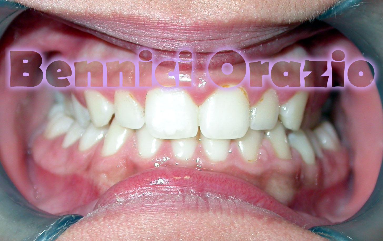 Ortodonzia linguale in paziente di sesso femminile di 12 anni. Dr Orazio Bennici
