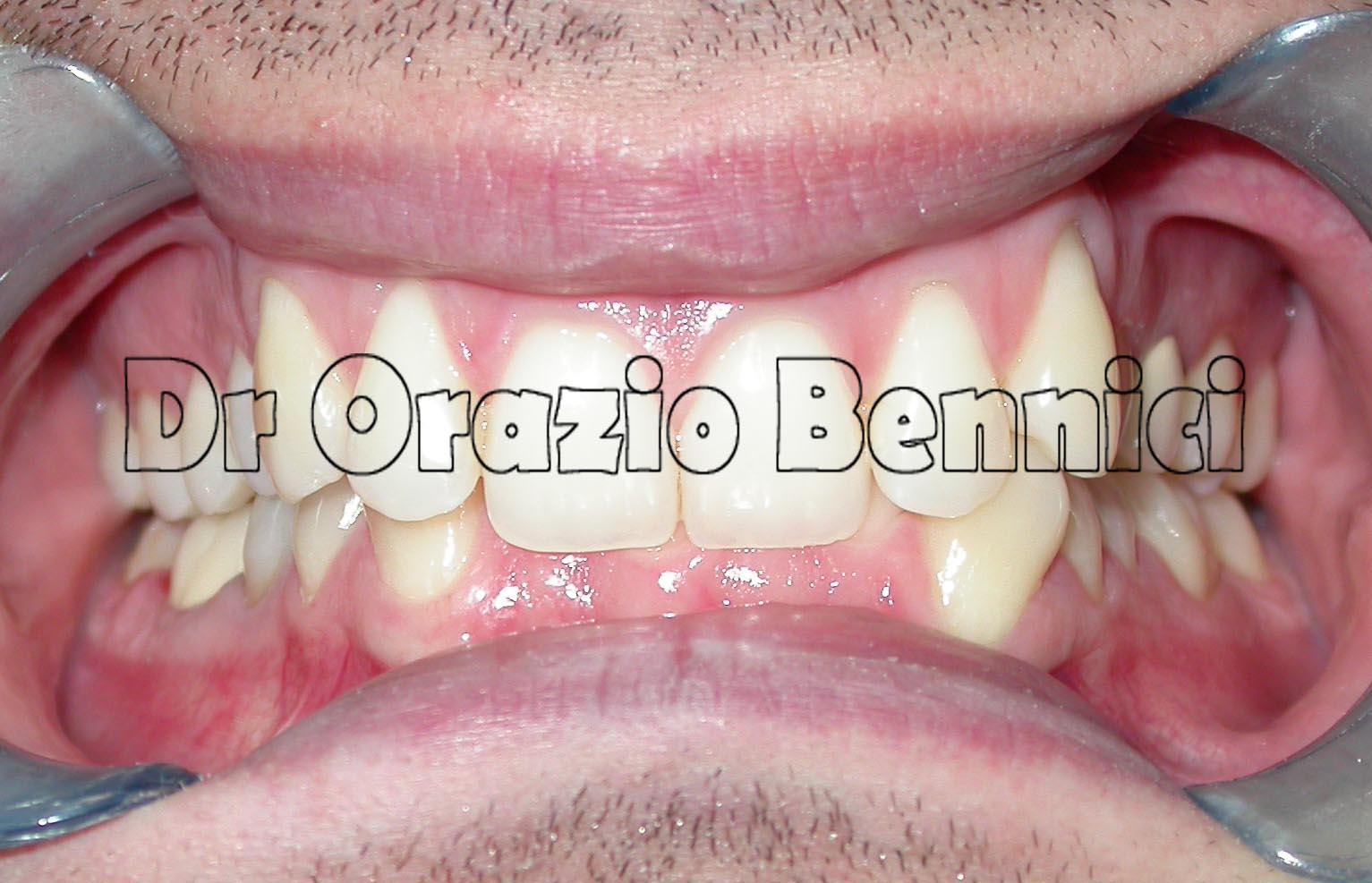 Blocco mandibolare. Dr Orazio Bennici